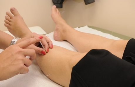 איך דיקור סיני יכול לעזור לך להקל על כאבים כרוניים?